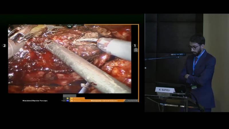 Robot-assisted Laparoscopic Resection of Hepatic Liver Tumor with a portion of right posterior Hepatic Vein