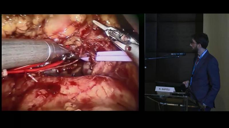 Laparoscopic Microwave Liver Ablation and Portal Vein Ligation An alternative approach to conventional ALPPS procedure in hilar cholangiocarcinoma