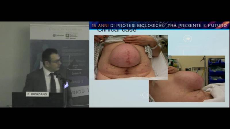 Cosa mi hanno insegnato 15 anni di impianti di protesi biologiche