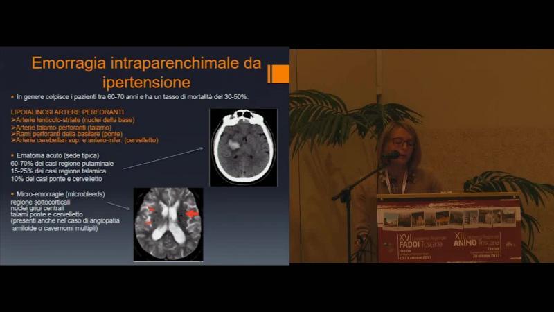 Emorragia intracranica: quadri neuroradiologici