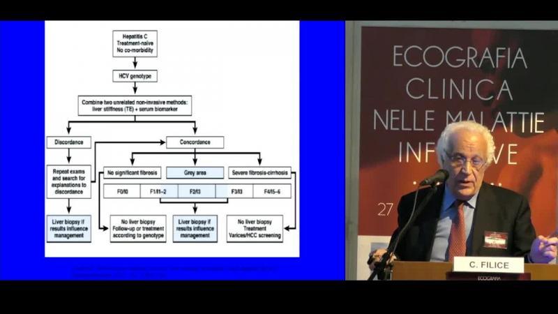 Il ruolo delle metodiche elastosonografiche nella  valutazione della fibrosi epatica