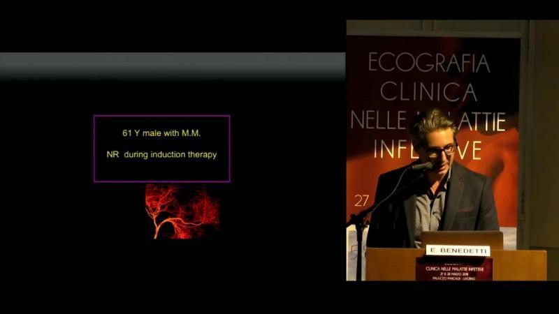 Milza e linfonodi Il paziente ematologico