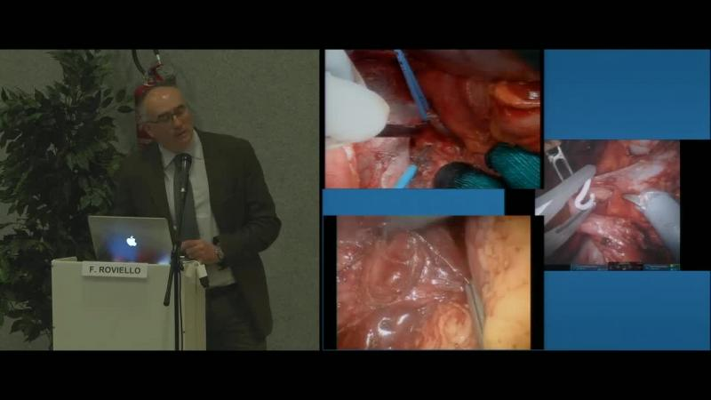 Superextended D2 lymphadenectomy in gastric cancer surgery