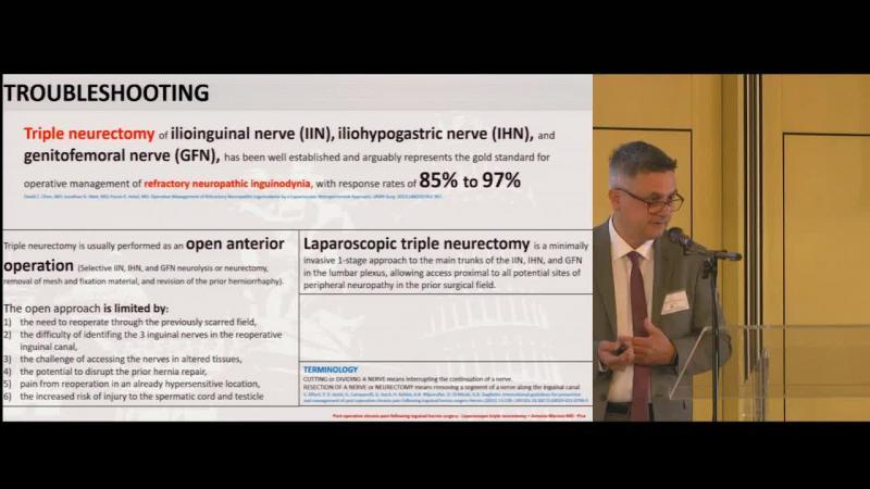Triplice neurectomia nel dolore cronico postoperatorio Approccio posteriore VLS
