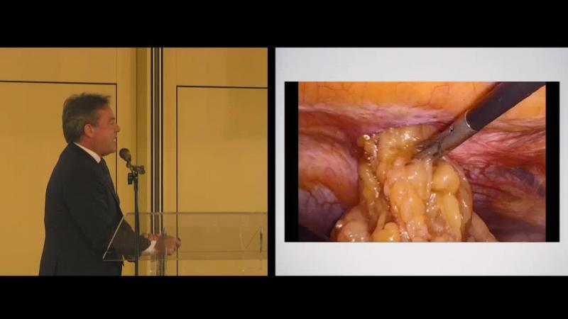 Approccio laparoscopico