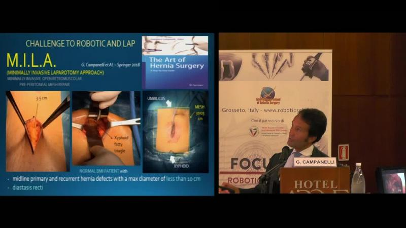 New trends in abdominal wall surgery