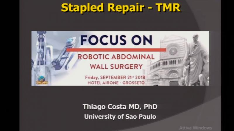 "Videoconference from San Paolo Brazil Ventral hernia ""The Brazilian technique"""
